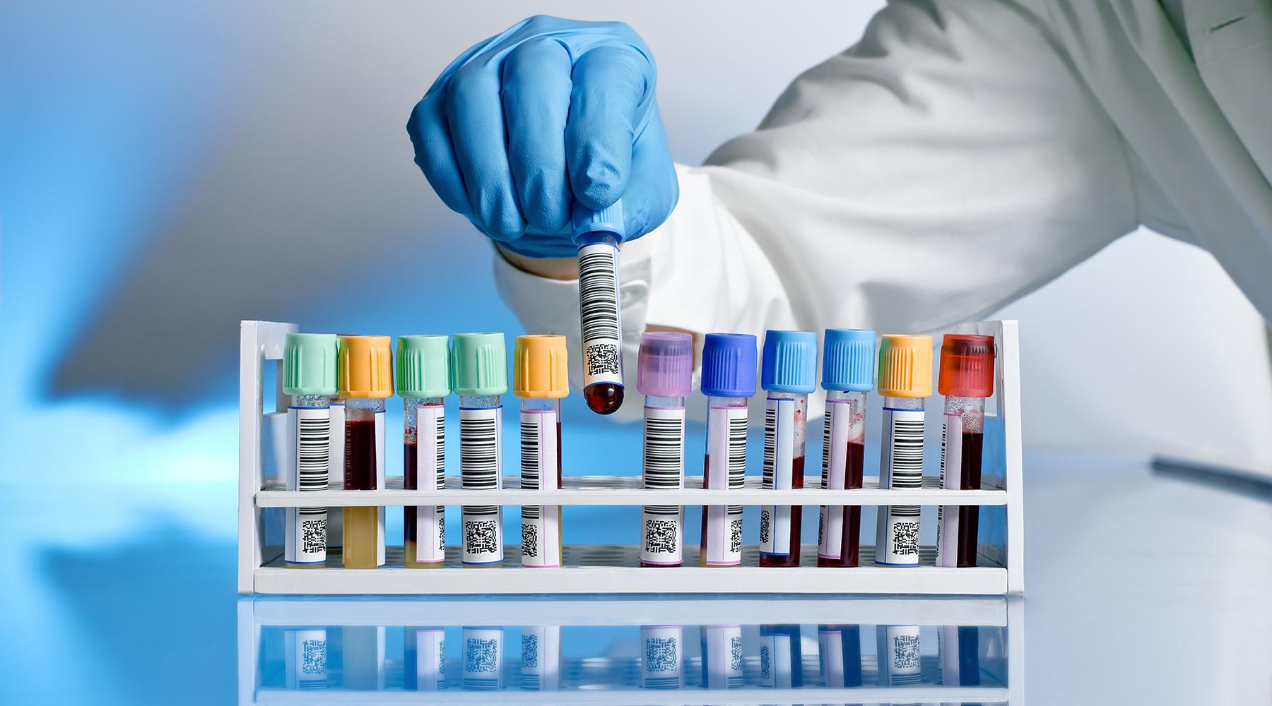 тест на антитела