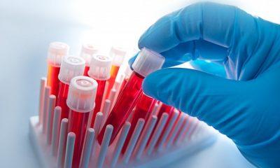 В США разработан новый анализ крови определяющий 50 типов рака - Фото