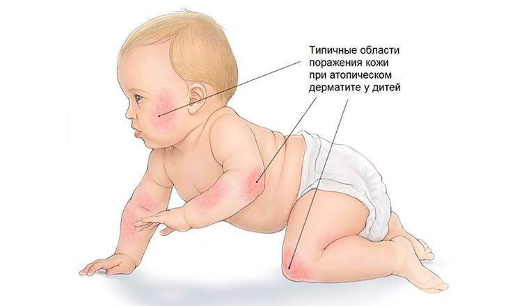 Атопический дерматит или экзема - Фото